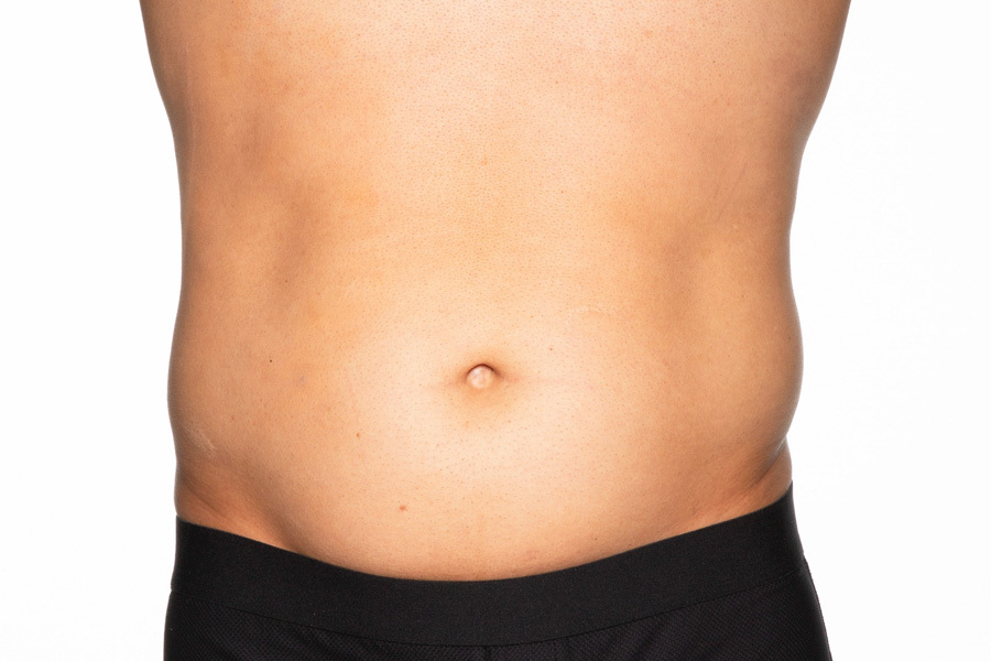 CoolSculpting Elite Abdomen and Flanks Treatment Before photo