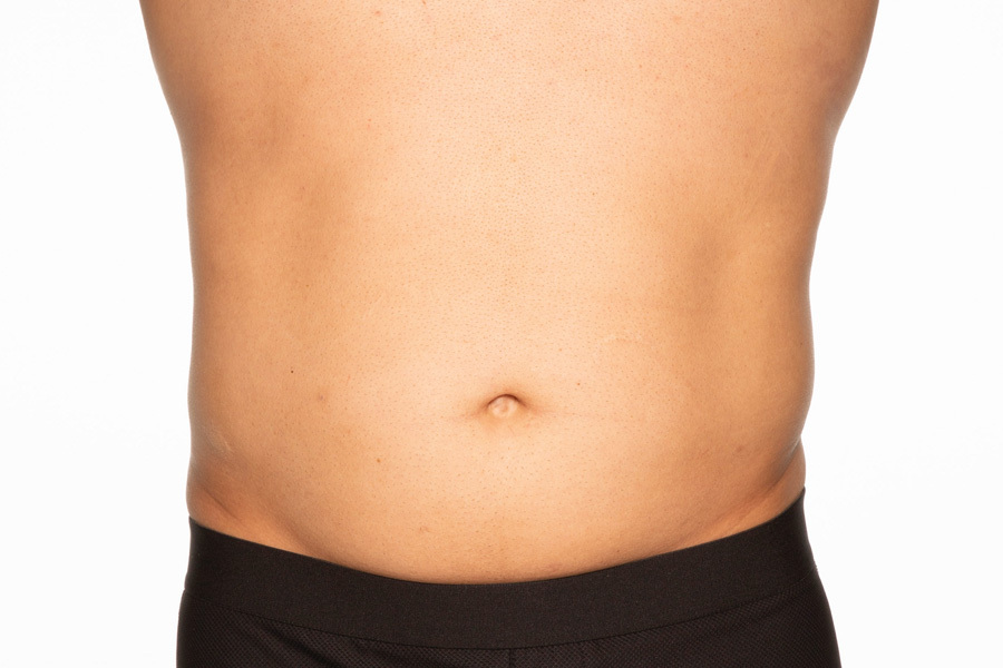 CoolSculpting Elite Abdomen and Flanks Treatment During photo