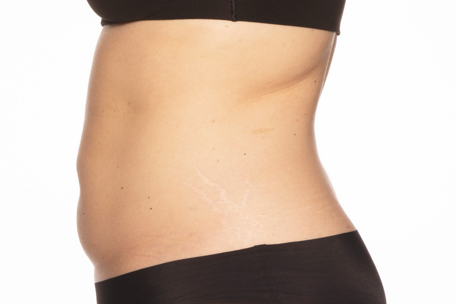CoolSculpting Elite Abdomen and Flanks Treatment After photo
