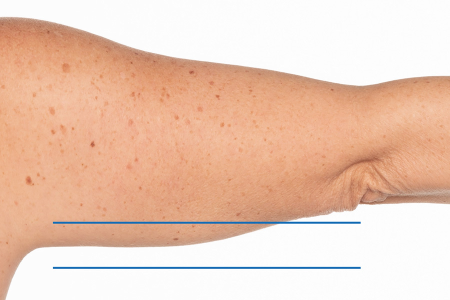 CoolSculpting Elite Upper Arm Treatment During photo