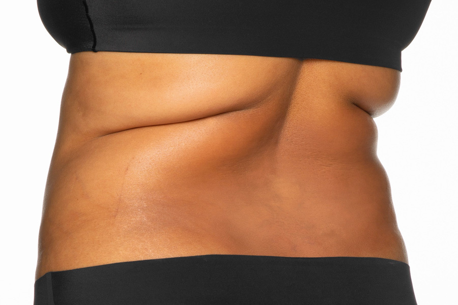 CoolSculpting Elite Bra Fat and Flanks Treatment Before photo