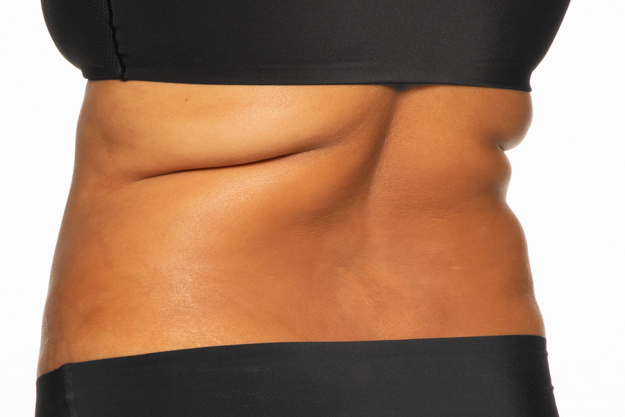 CoolSculpting Elite Bra Fat and Flanks Treatment During photo