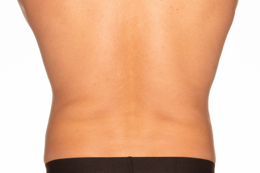 CoolSculpting Elite Flanks Treatment After photo