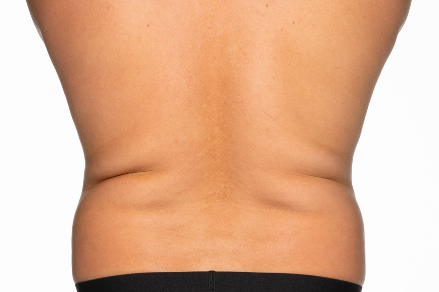 CoolSculpting Elite Flanks Treatment Before photo