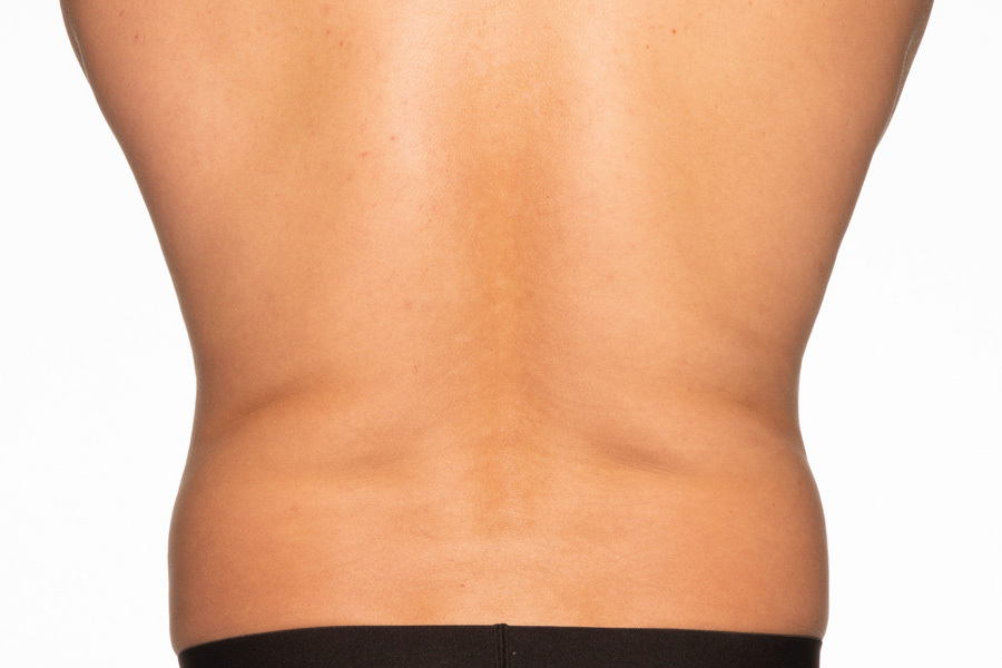 CoolSculpting Elite Flanks Treatment During photo
